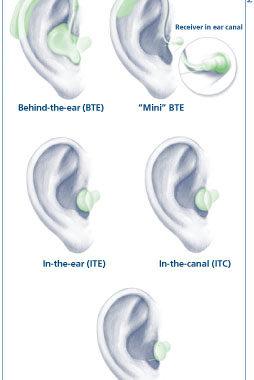 HearingAidTypes